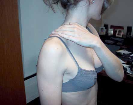 L'arthropathie acromio-claviculaire : il suffit d'y penser !