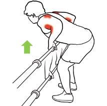 Pathologies de l'épaule en musculation fig1