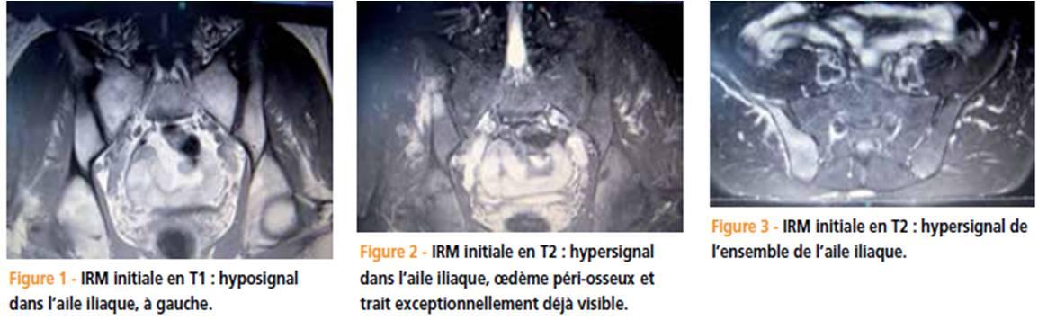 une douleur de fesse fracture de fatigue de l aile iliaque