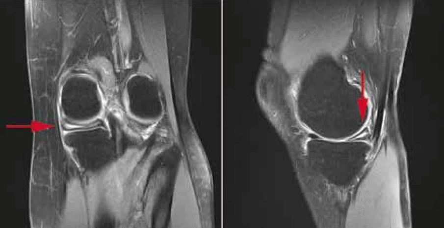 I M Sport >> IRM d'un genou présentant un ménisque dégénératif | La médecine du sport