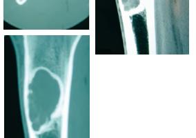 93- la dysplasie fibreuse fig3