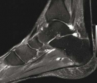 Imagerie_MDS116_Figure1_Tendinopathieachilléenne