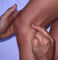 Tendinopathies de la face postérieure du genou : Anatomie et prise ...