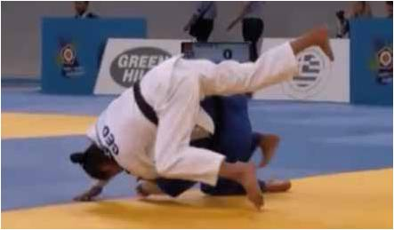 Chirugie-MDS120-Image1-Les luxations de l'épaule sont fréquentes dans les sports de combat.
