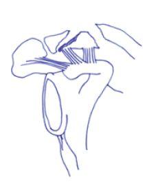 MDS123-Traitement factue quart externe clavicule- Figure 5 - Fracture de clavicule de type V.