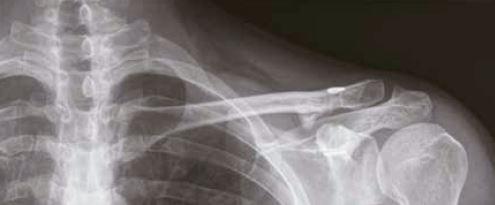 MDS123-Traitement facture quart externe clavicule- Figure 9 - Radiographie de clavicule de face à 3 mois postopératoires.