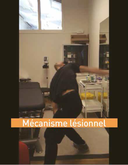 Une douleur d'épaule chez un danseur de l'Opéra de Paris ...